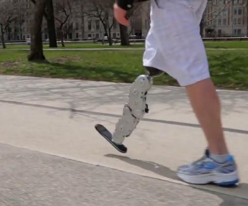 ロボット工学を応用した最新の義足